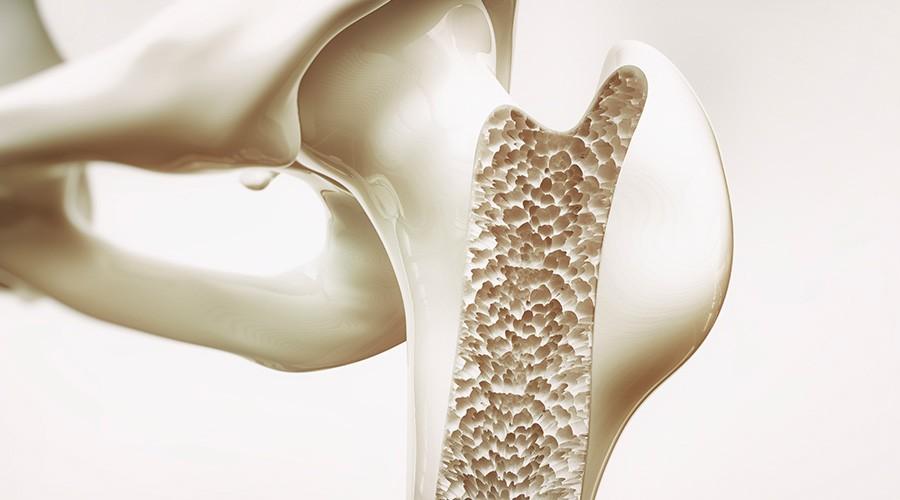 Rivedi il webinar Osteoporosi e stili di vita